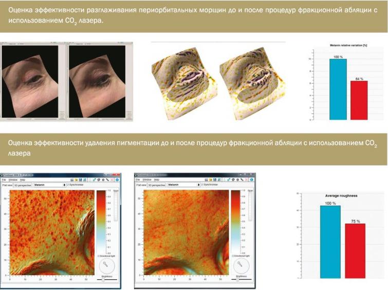 Клеточная 3D диагностика кожи
