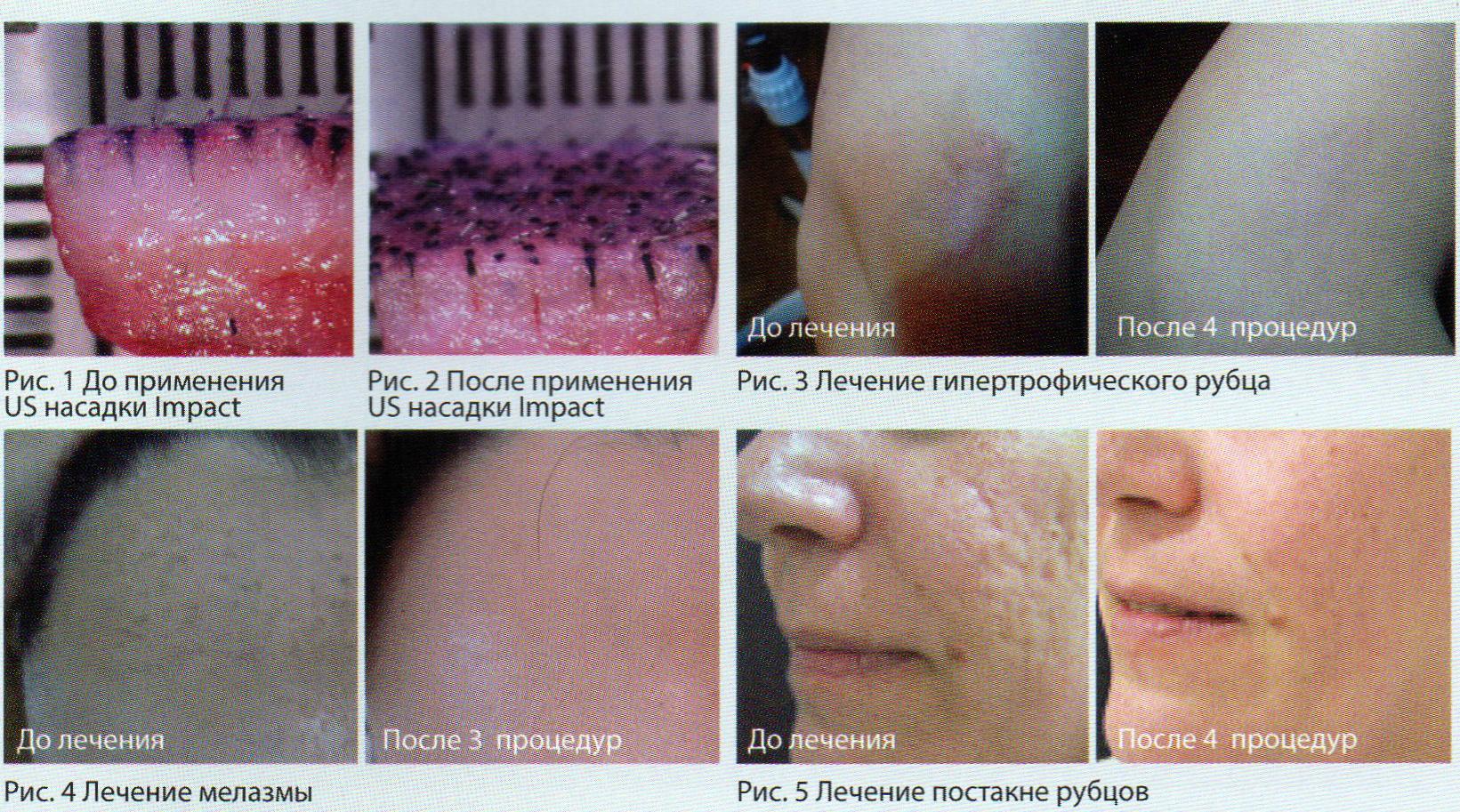 лечение рубцовых изменений ткани