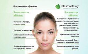 Плазмотерапия PRP