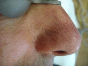 лечение купероза до