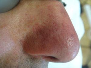 лечении купероза после
