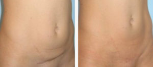 Лечение шрамов, рубцов лазером