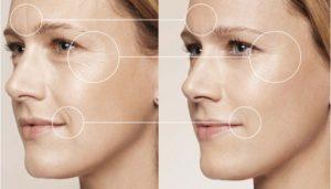 Коррекция морщин ботулотоксином