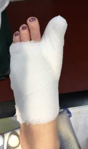 """Лечение """"косточек"""" первого пальца стоп после процедуры"""