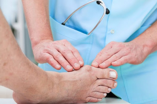 лечение косточек первого пальца стоп