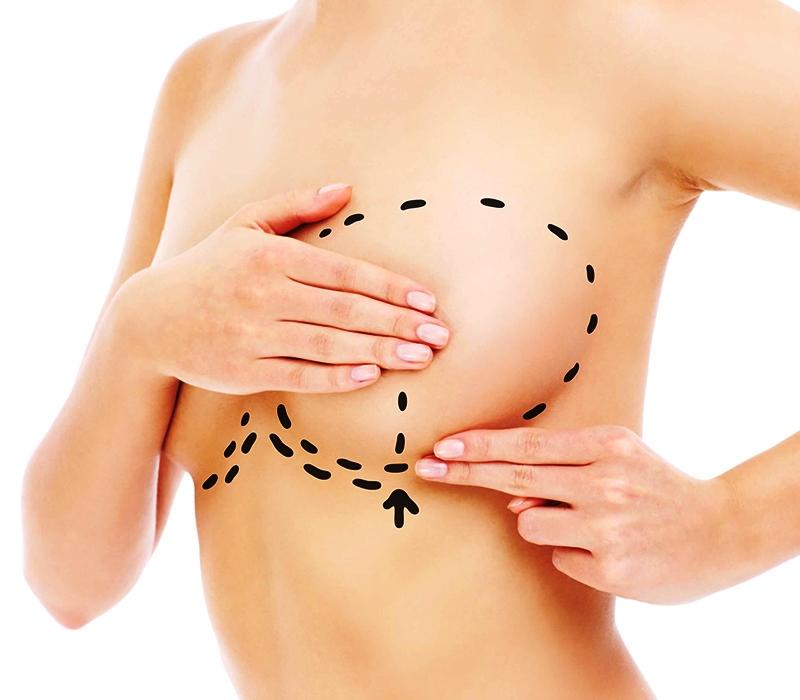 Коррекция груди