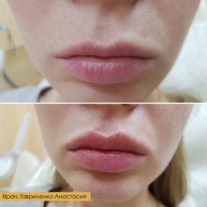 Увеличение губ и коррекция носогубных складок.