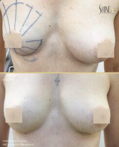 липофилинг груди до после1