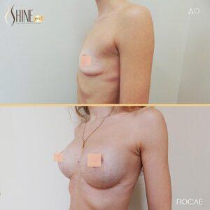 увеличение груди1