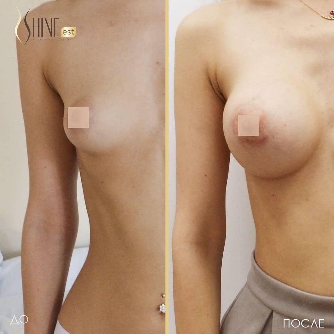 Маммопластика - результаты