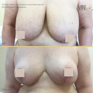 уменьшение и подтяжка груди до-после1