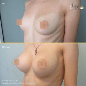увеличение груди до после1