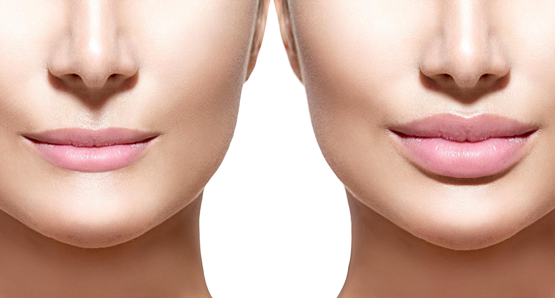 Когда спадает отечность после увеличения губ?