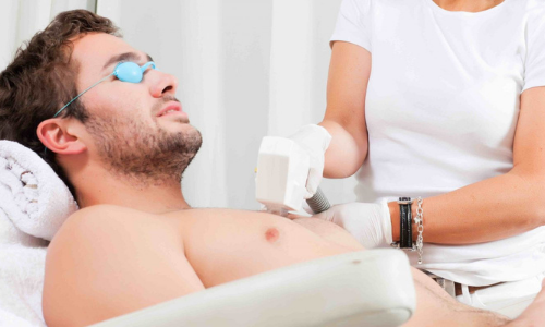 лазерная эпиляция для мужчин